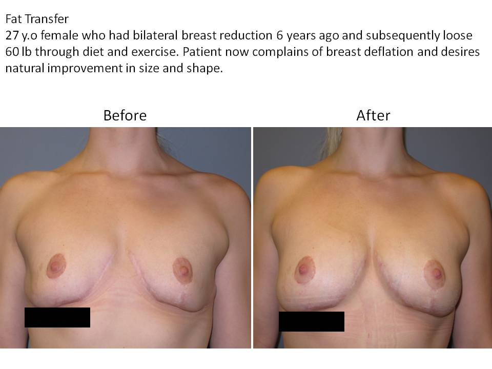 Fat Transfer for breast enhancement page 1 Breast Plastic Surgery Before & After
