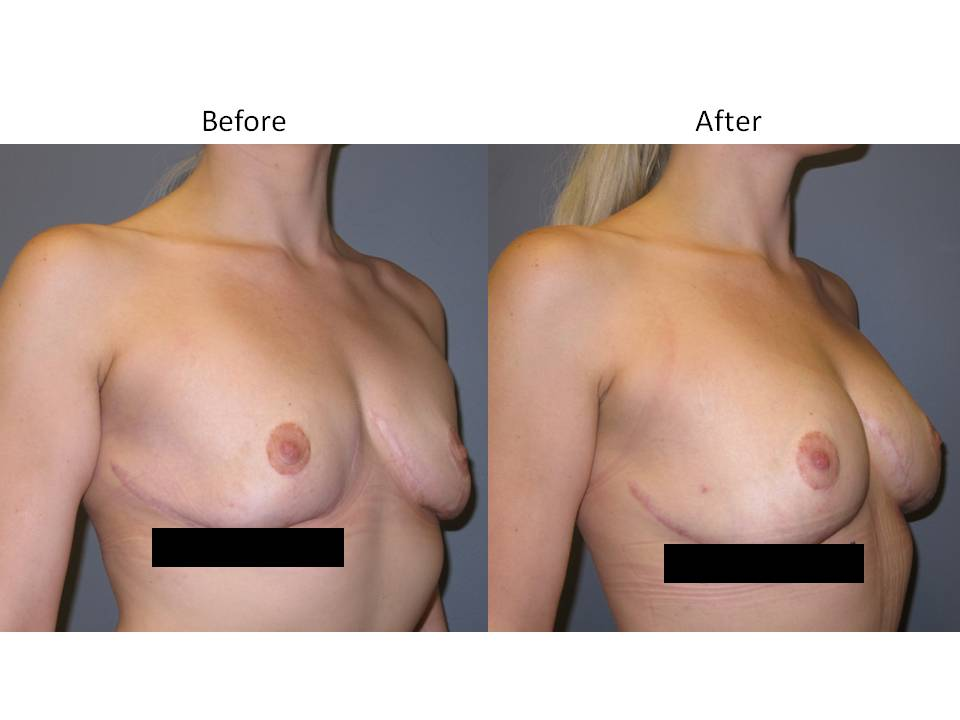 Fat Transfer for breast enhancement page 2 Breast Plastic Surgery Before & After
