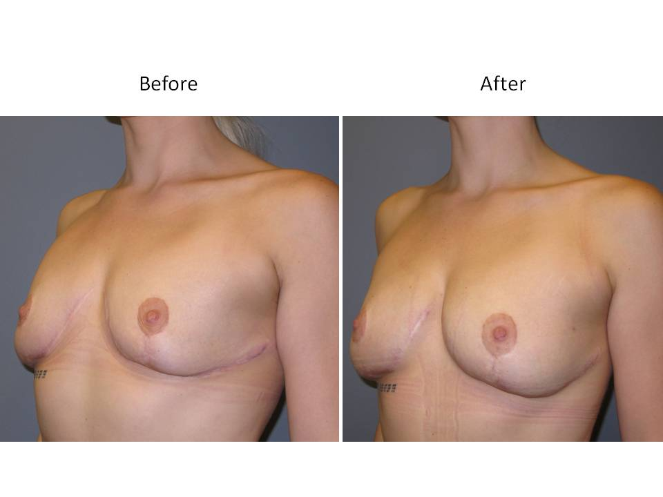 Fat Transfer for breast enhancement page 3 Breast Plastic Surgery Before & After