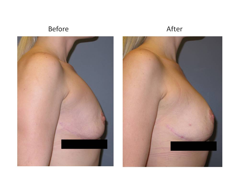 Fat Transfer for breast enhancement page 4 Breast Plastic Surgery Before & After