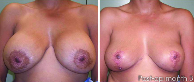 before after 1 1 Breast Plastic Surgery Before & After
