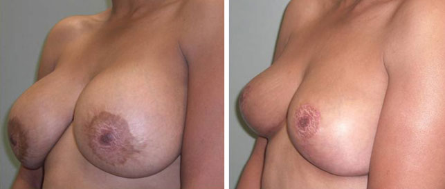 before after 1 Breast Plastic Surgery Before & After