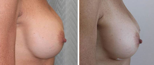 before after 10 Breast Plastic Surgery Before & After