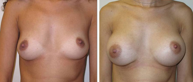 before after 11 Breast Plastic Surgery Before & After