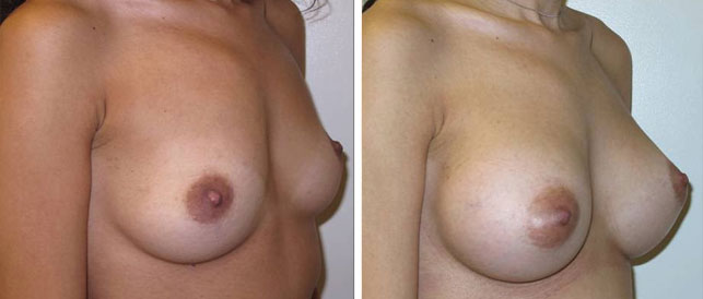 before after 12 Breast Plastic Surgery Before & After