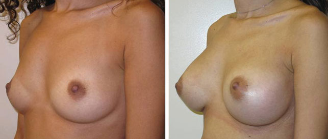 before after 13 Breast Plastic Surgery Before & After