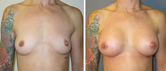 before after 14 Breast Plastic Surgery Before & After