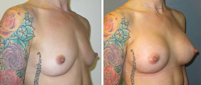 before after 15 Breast Plastic Surgery Before & After