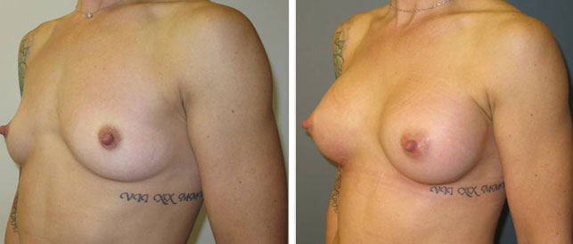 before after 16 Breast Plastic Surgery Before & After
