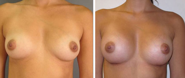 before after 17 Breast Plastic Surgery Before & After