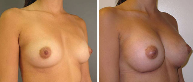before after 19 Breast Plastic Surgery Before & After