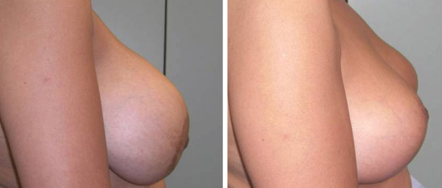 before after 2 Breast Plastic Surgery Before & After