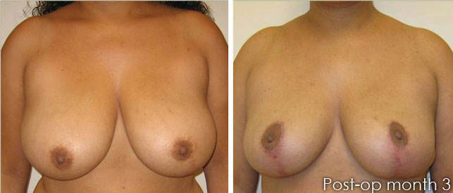 before after 3 Breast Plastic Surgery Before & After