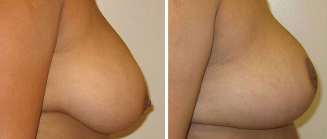before after 4 Breast Plastic Surgery Before & After