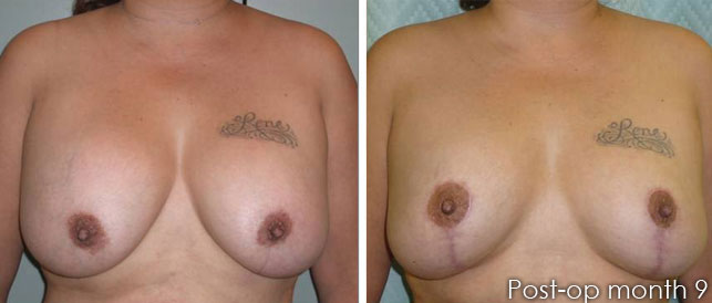 before after 5 Breast Plastic Surgery Before & After