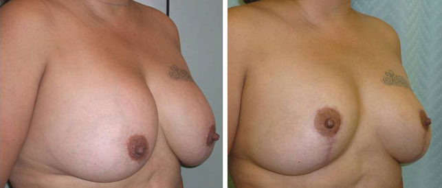before after 6 Breast Plastic Surgery Before & After
