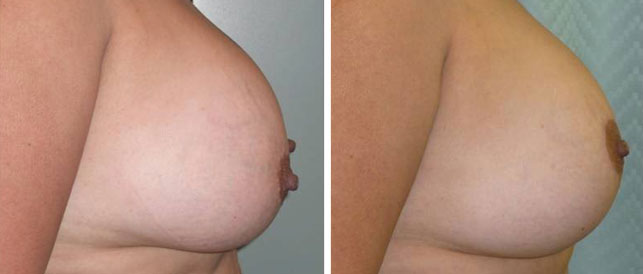 before after 7 Breast Plastic Surgery Before & After