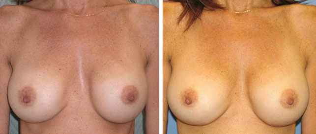 before after 8 Breast Plastic Surgery Before & After