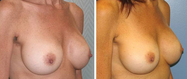 before after 9 Breast Plastic Surgery Before & After