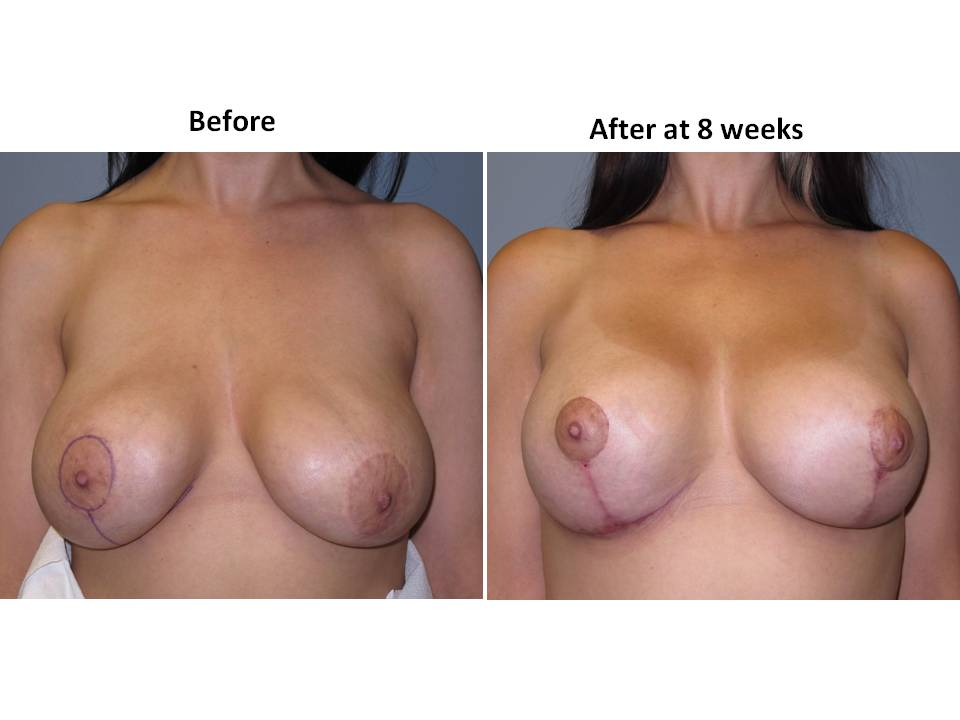 breast lift with implants 16 Breast Plastic Surgery Before & After