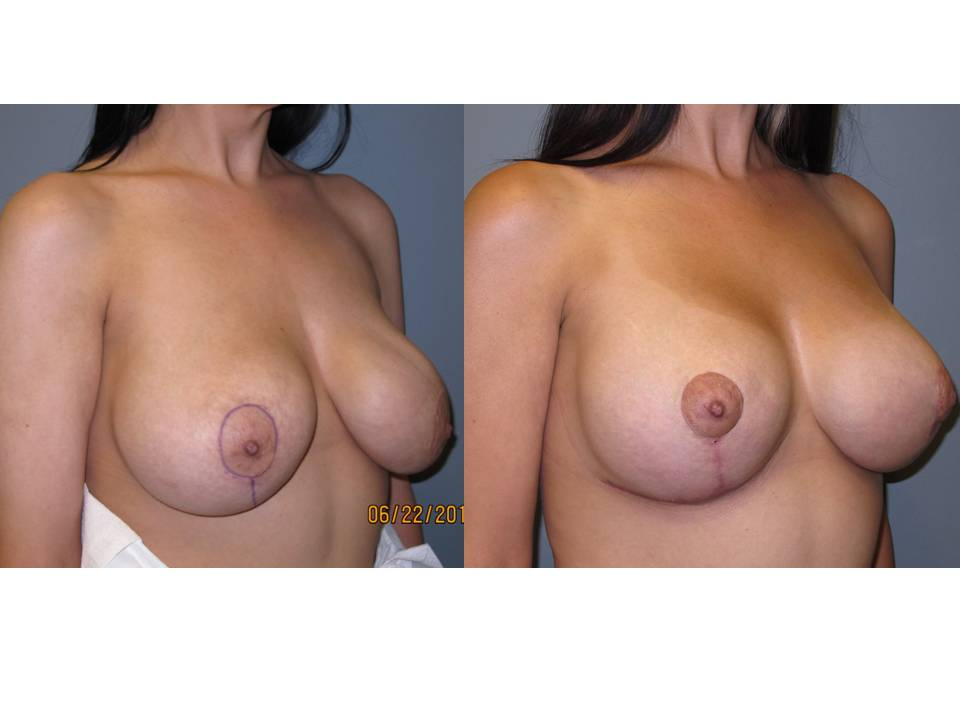 breast lift with implants 24 Breast Plastic Surgery Before & After