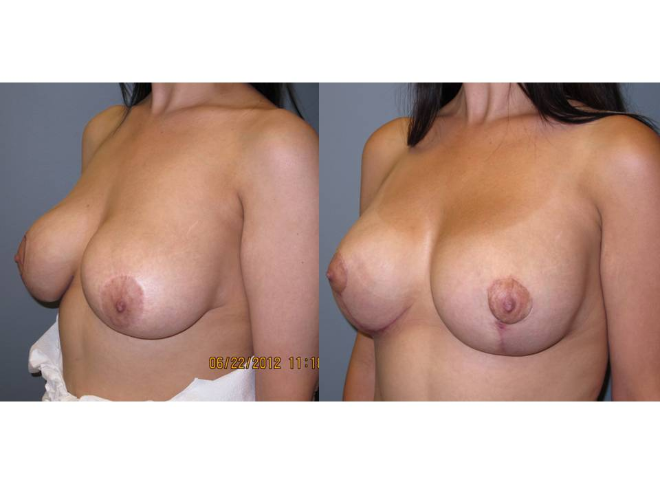 breast lift with implants 34 Breast Plastic Surgery Before & After