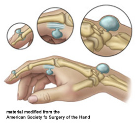 ganglion cysts are very common lumps within the hand and wrist that