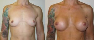 pannel 1 edited 1 300x128 Breast Plastic Surgery Before & After