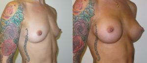 pannel 2 edited 1 300x128 Breast Plastic Surgery Before & After