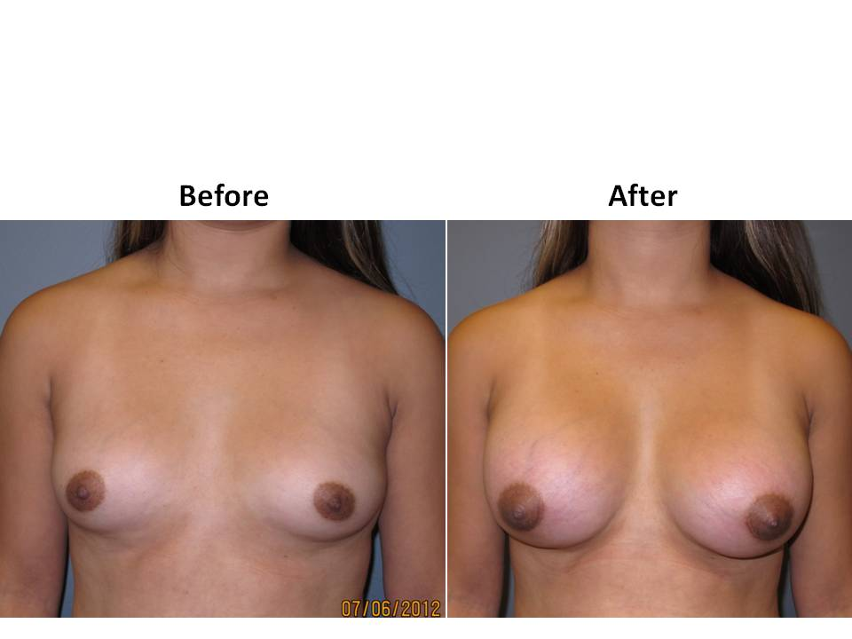 patient 12 page 12 Breast Plastic Surgery Before & After