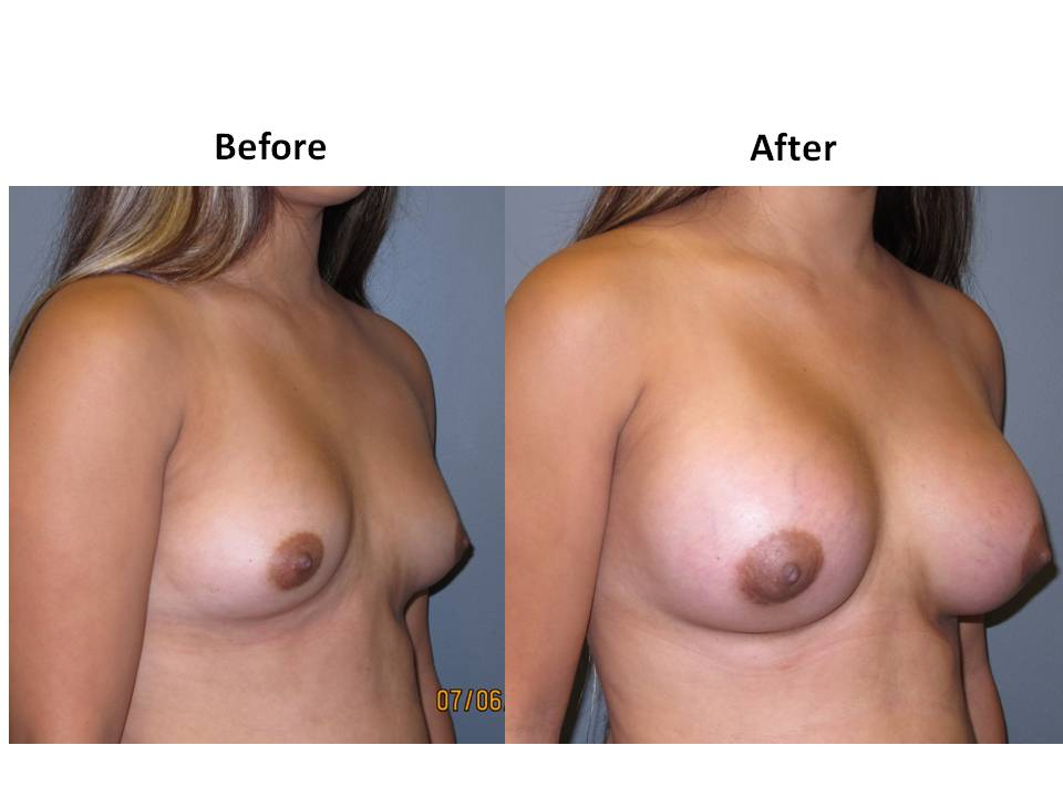 patient 12 page 22 Breast Plastic Surgery Before & After