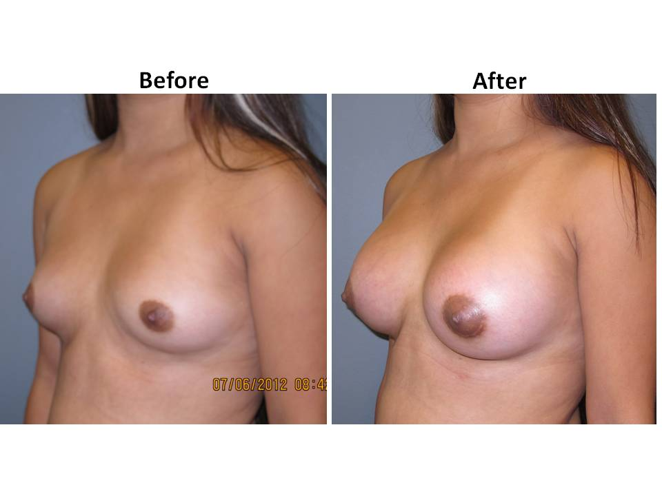 patient 12 page 32 Breast Plastic Surgery Before & After