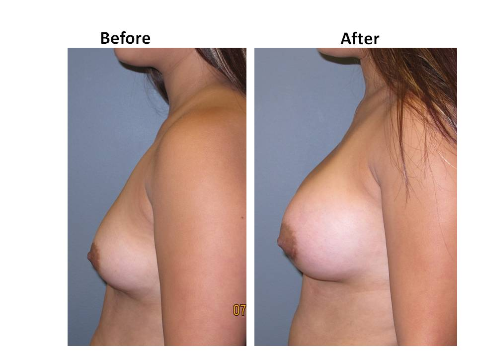 patient 12 page 42 Breast Plastic Surgery Before & After