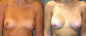 patient 14 1 300x128 Breast Plastic Surgery Before & After