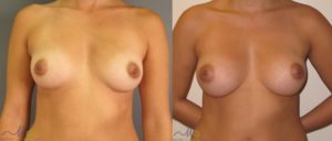 patient1 1 300x128 Breast Plastic Surgery Before & After