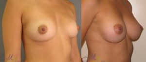 patient1 2 300x128 Breast Plastic Surgery Before & After