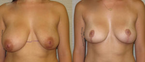 patient10 1 300x128 Breast Plastic Surgery Before & After