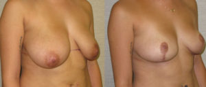 patient10 2 300x128 Breast Plastic Surgery Before & After