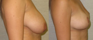 patient10 3 300x128 Breast Plastic Surgery Before & After