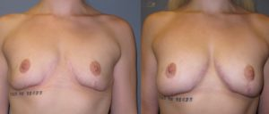 patient11 1 300x128 Breast Plastic Surgery Before & After