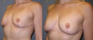 patient11 2 300x128 Breast Plastic Surgery Before & After