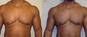 patient12 1 300x128 Breast Plastic Surgery Before & After