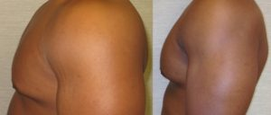 patient12 3 300x128 Breast Plastic Surgery Before & After