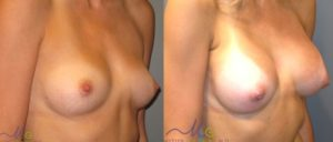 patient14 2 300x128 Breast Plastic Surgery Before & After