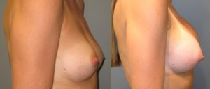 patient14 3 300x128 Breast Plastic Surgery Before & After