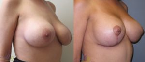 patient15 2 300x128 Breast Plastic Surgery Before & After
