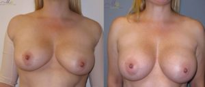 patient16 1 300x128 Breast Plastic Surgery Before & After