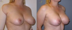 patient16 2 300x128 Breast Plastic Surgery Before & After