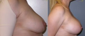 patient16 3 300x128 Breast Plastic Surgery Before & After