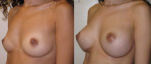 patient3 2 300x128 Breast Plastic Surgery Before & After